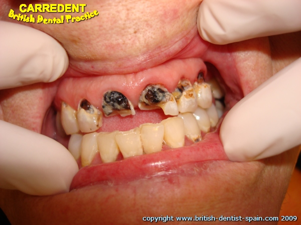 crowns fillings 1 decayed teeth