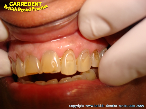 acid eroded teeth stained 1