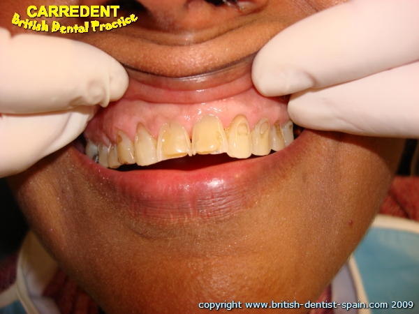 acid eroded teeth stained 2