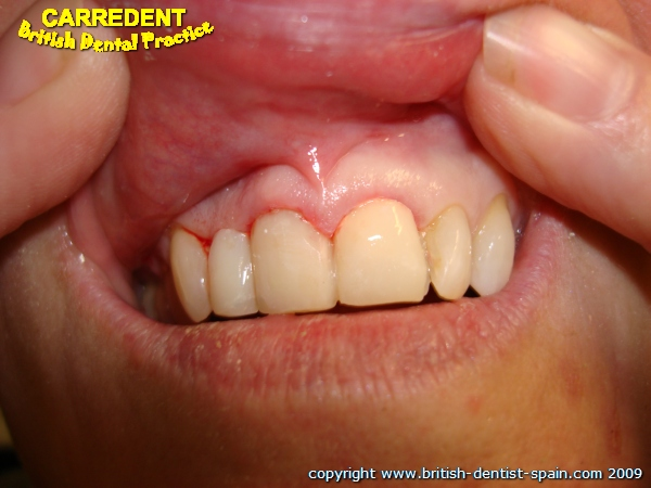 stained twisted teeth 3 immediately after treatment